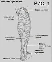 Ахиллова сухожилия