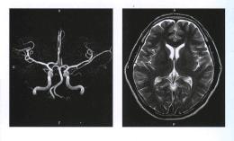 МРТ реконструкция сосудов головного мозга и МРТ головного мозга