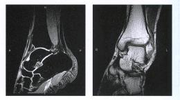МРТ голеностопного сустава в разных диагностических режимах