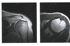 МРТ плечевого сустава на оборудовании открытого типа 0.4 тесла.