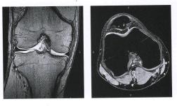 МРТ коленного сустава на оборудовании открытого типа 0.4 тесла.
