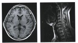 МРТ головного мозга на оборудовании открытого типа 0.4 тесла.