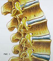 Всегда ли причиной боли в спине бывает грыжа межпозвонкового диска?