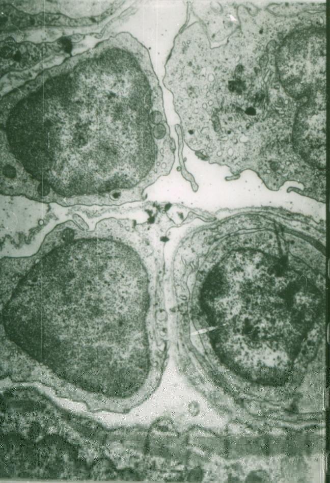 Эндотелиальная стресс-реакция с формированием атеросклеротической бляшки в эксперименте