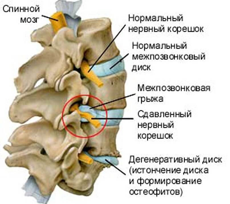 Лікування болю в попереку в Києві