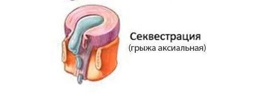 Що таке грижа диска і чим вона відрізняється від протрузії диска, пролапсу і екструзії