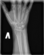Цифровой рентген лучезапястного сустава