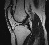 МРТ коленного сустава в сагиттальной плоскости
