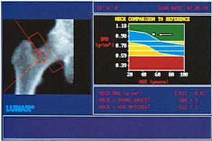 Диагностика остеопороза тазобедренного сустава