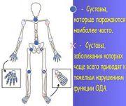 250px artroz4 180 151