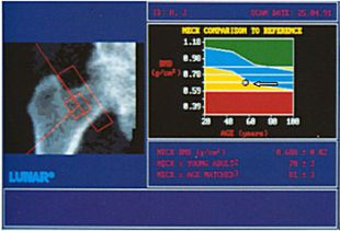 Диагностика остеопороза костей тазобедренного сустава