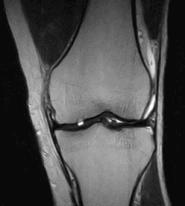 МРТ коленного сустава. Повреждение суставного хряща медиального мыщелка бедренной кости