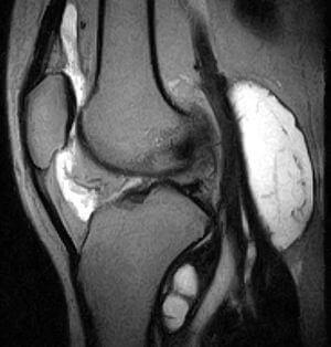 МРТ коленного сустава. Синовиит коленного сустава, киста подколенной ямки (киста Бейкера). Болезнь Гофа.