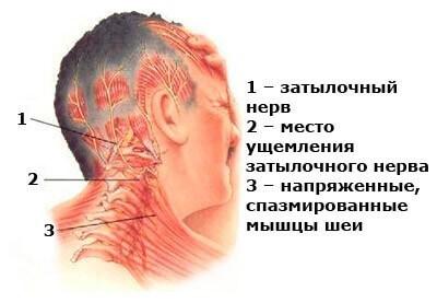 Лечение головной боли напряжения