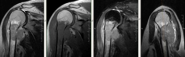 Освіта проксимального відділу діафіза правої плечової кістки, з проростанням в прилеглі м'які тканини плеча