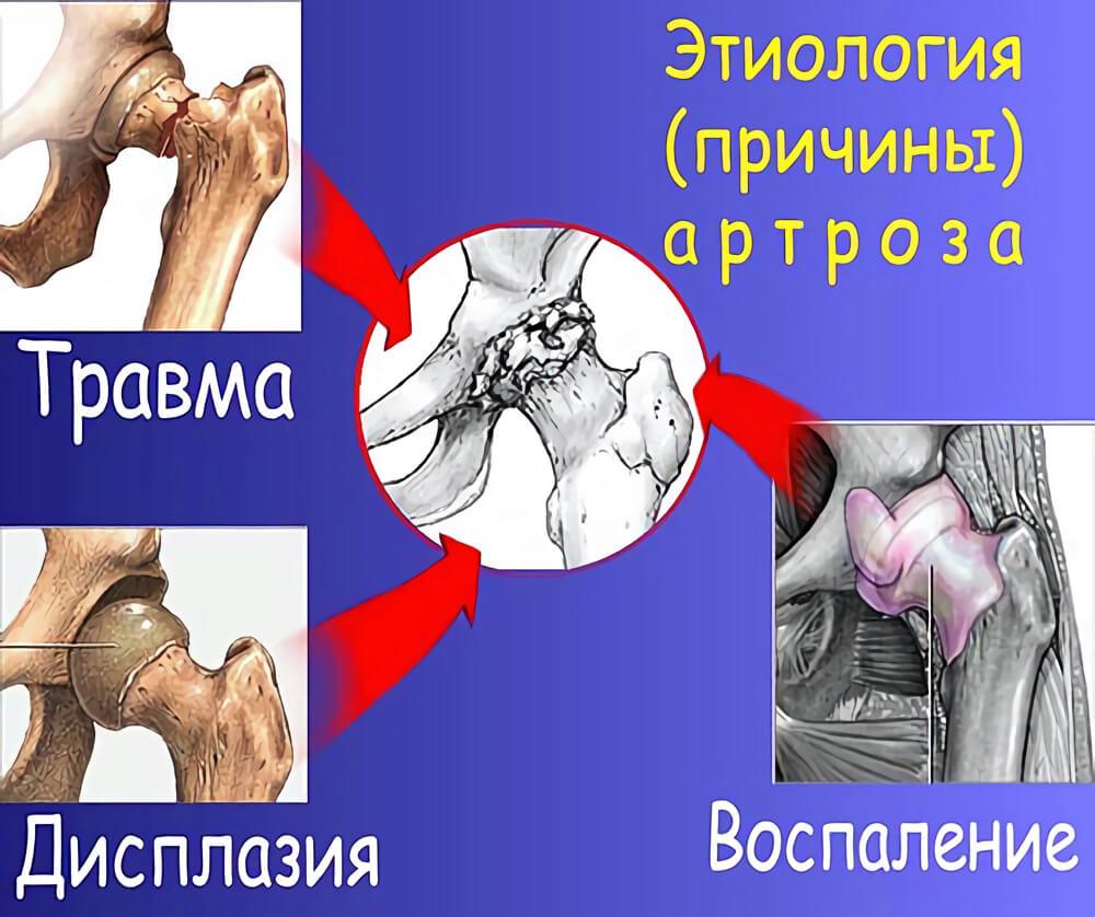Лікування артрозу суглобів в Києві