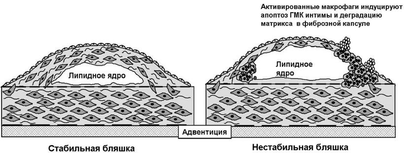 Ілюстрація, надана неврологом, доктором медичних наук Н.С.Турчиною, Київ