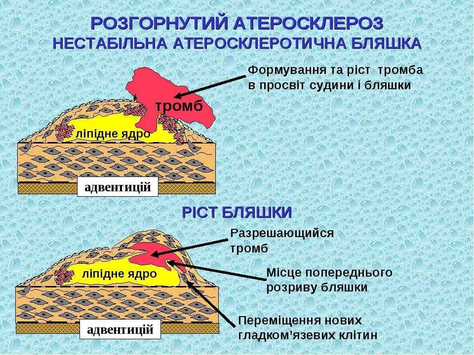 Ілюстрація професора кафедри терапії і сімейної медицини ФПО, д.м.н. Рудик Б.І., Київ