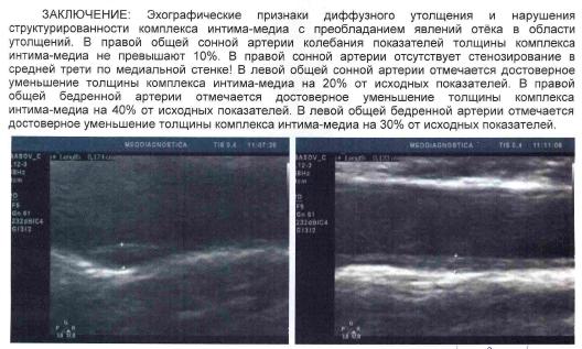 Діагностика і нехірургічне лікування атеросклерозу судин мозку в Києві