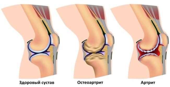 Коленный сустав боль, лечение