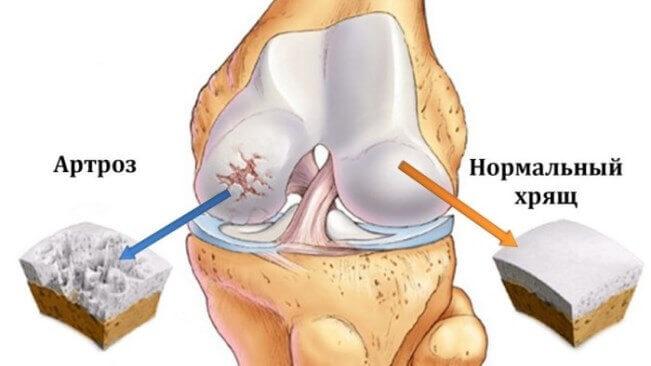 Острая боль в колене - причины и лечение