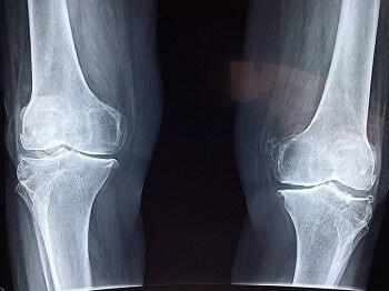 Лікування болю в коліні в Києві
