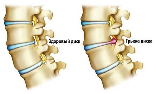 Болит поясница. Лечения грыж и протрузий дисков в поясничном отделе
