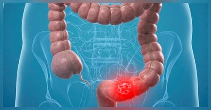 Болі внизу живота у жінок частіше лікує гінеколог