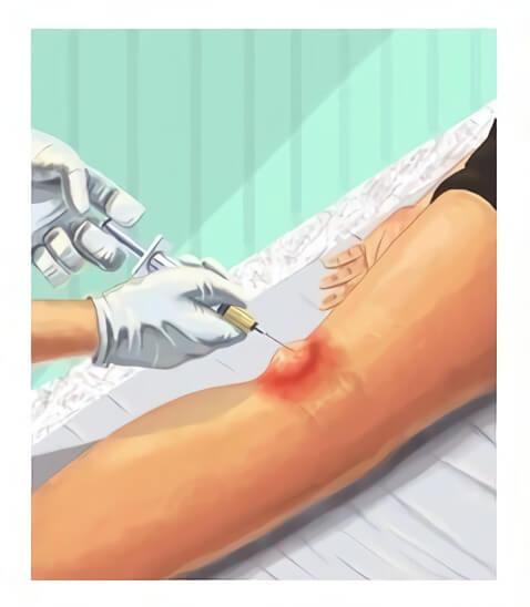 Лікування кісти Бейкера колінного суглоба в Києві
