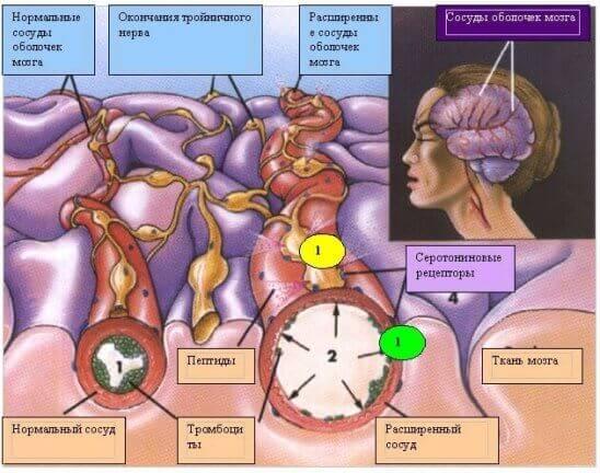Сосуды растягиваются, вызывая раздражение нервов в стенах сосудов, вызывая боль