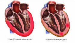 Миокардит (воспаление мышцы сердца)