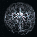 МРТ головного мозку