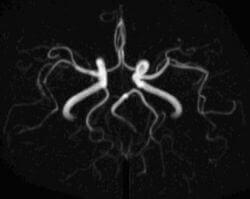 МРТ реконструкция сосудов головы и шеи