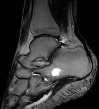 МРТ гомілковостопних суглобів