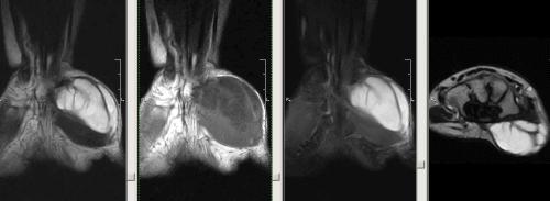 МРТ-зображенні: посттравматичний багатокамерна кіста тенара