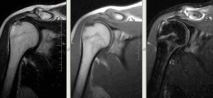 На симке МРТ плечового суглоба - розрив сухожилля надостной м'язи