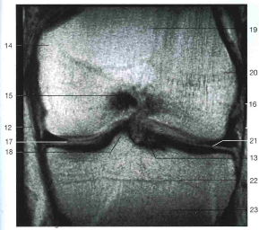 МРТ колена: мениски черного цвета под номерами 17 и 21