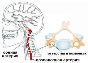 sosudy golovnogo mozga