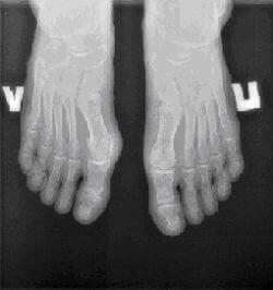 Цифровой рентген стоп