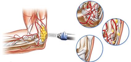 Метод ударно-волновой терапии