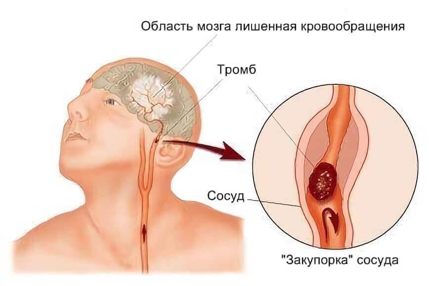 Закупорка сосудов, причина головной боли
