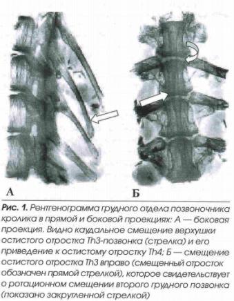 fasetochnyj sindrom1