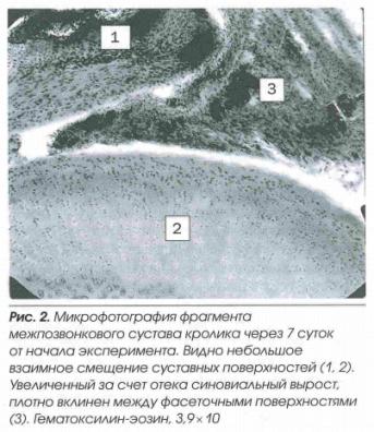 Микрофотография фрагмента межпозвонкового сустава кролика через 7 суток после начала эксперимента
