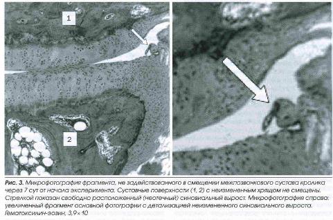 Микрофотография фрагмента не задействованного в смещении межпозвонкового сустава кролика через 7 дней после начала эксперимента