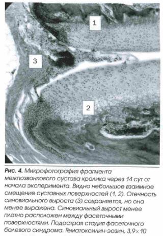 fasetochnyj sindrom4