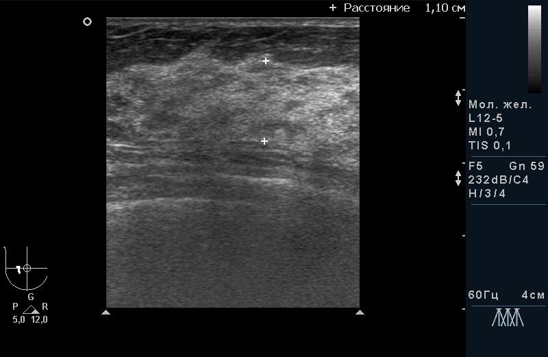 Диффузная форма мастопатии без гиперплазии и фиброза