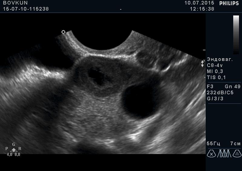 Внематочная беременность в ампулярном отделе маточной трубы
