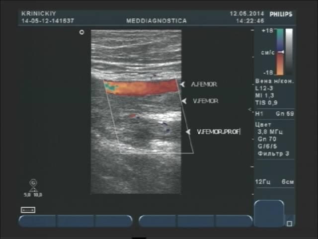 Дуплексне сканування (УЗД) вен нижніх кінцівок