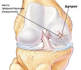Артрит лучезапястного сустава