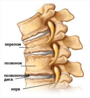 Болі в грудному відділі хребта. Біль і печіння між лопатками. Причини, лікування